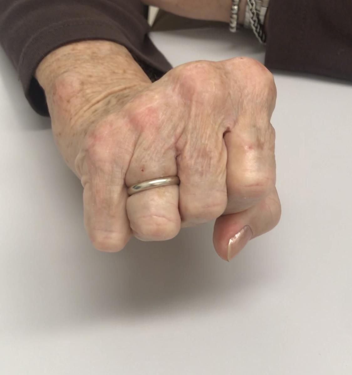 artrose handen